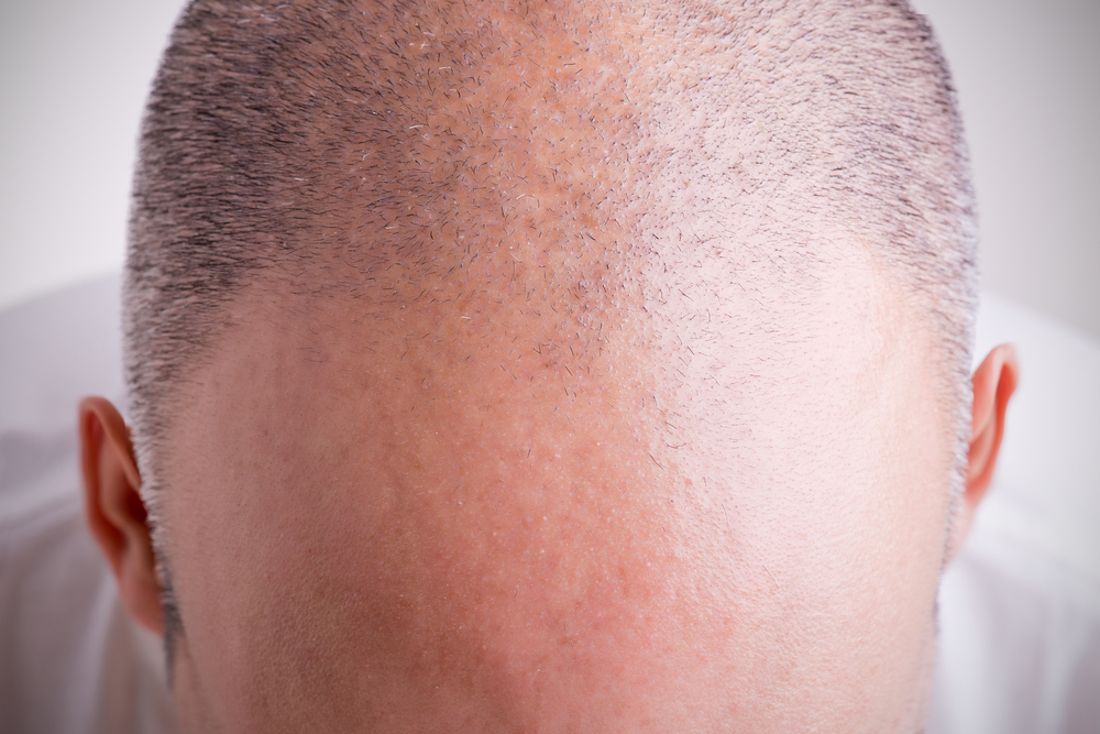 Hair loss in men and treatment for hair loss