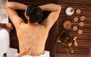 what is cupping? does cupping work?