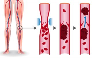 what is a DVT? Learn about the symptoms of a DVT