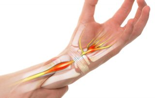 what is Carpal Tunnel Syndrome? Causes of Carpal Tunnel Syndrome