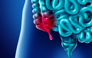 symptoms of appendicitis